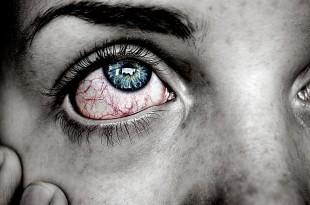 صوره علاج حرقان العين واحمرارها
