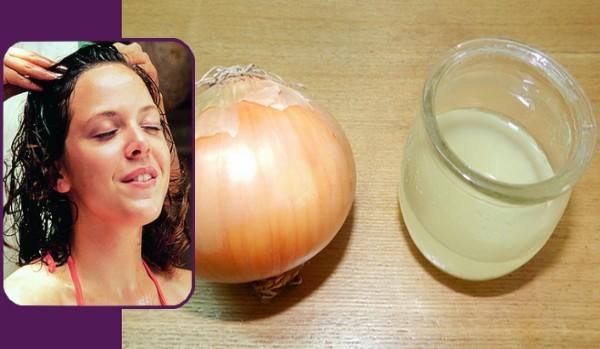 بالصور فوائد البصل مع العسل البصل لعلاج تساط الشعر 4