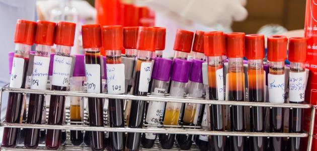 بالصور معلومات عن تحليل سيولة الدم للحامل 20160620 308
