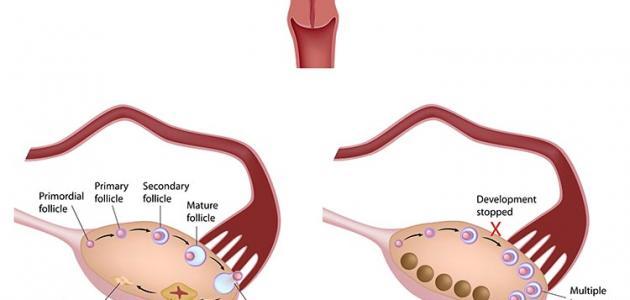 صور معلومات عن حويصلات المبيض