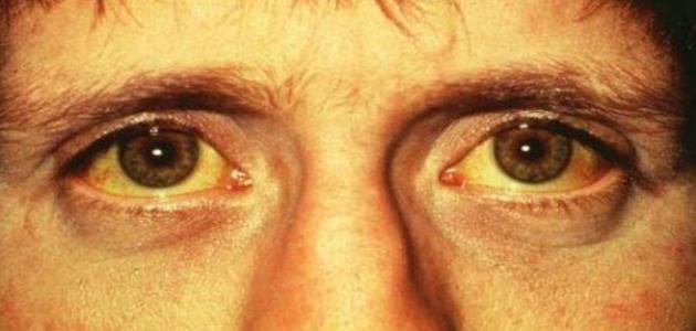 صوره ما هو سبب اصفرار الوجه