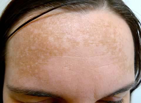 بالصور طريقة تقشير الجلد الغامق 20160623 678