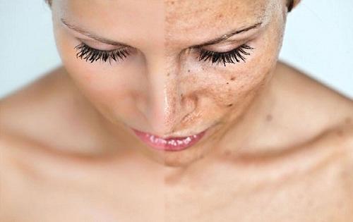 بالصور طريقة تقشير الجلد الغامق 20160623 679