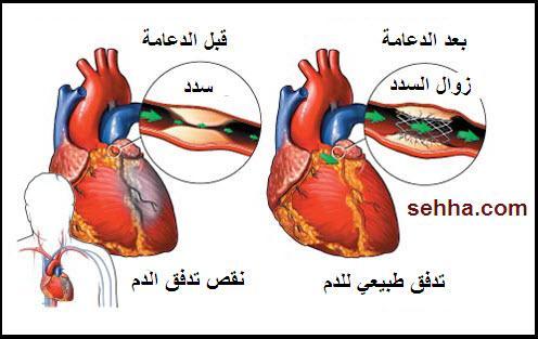 http://www.sehha.com/diseases/cvs/Coronary_stent3.jpg