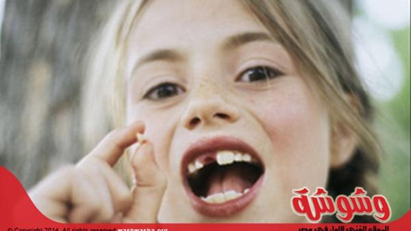 بالصور الاهمية في خلع اسنان الاطفال 20160624 656