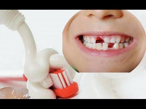 بالصور الاهمية في خلع اسنان الاطفال 20160624 657