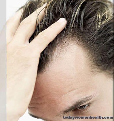 صوره ما هو عدد شعر الراس