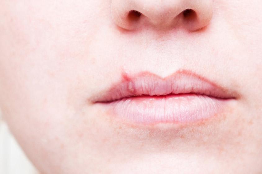 صوره علاج الحرارة في الفم