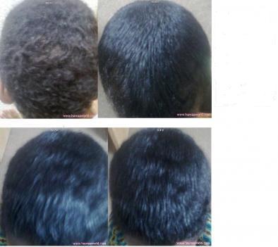 صوره وصفة لتنعيم الشعر للرجال