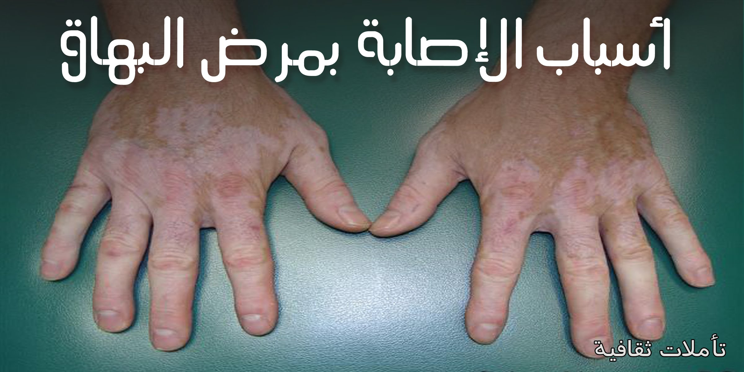 صور مرض البهاق اسبابه وعلاجه