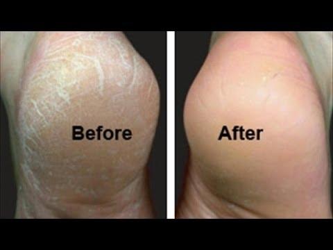 صوره افضل طرق لعلاج تشقق القدمين