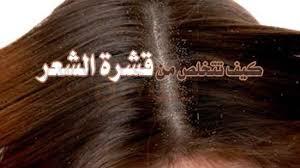 صوره افضل علاج لقشرة الشعر