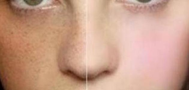 صوره علاج الكلف في الوجه
