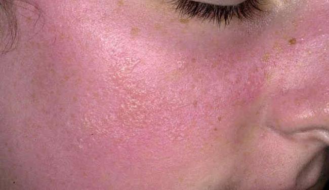 صور ما سبب احمرار الجلد و طريقة علاجة