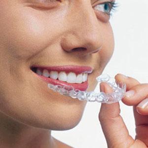 بالصور تبيض الاسنان من الصيدليه 20160627 2203
