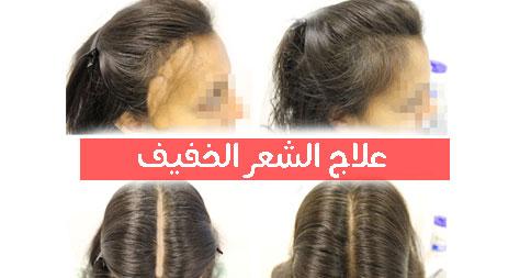 بالصور تقوية الشعر الخفيف جدا 20160628 151
