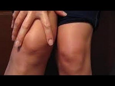 بالصور افضل علاج برودة الركبتين 20160628 1558