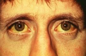 صوره ما علاج مرض الصفرة ؟