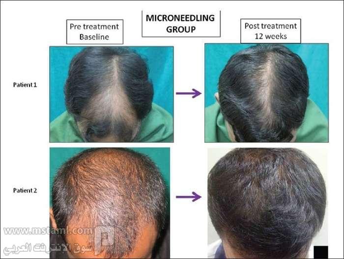 بالصور علاج الشعر الخفيف فعال 20160628 715