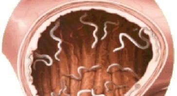 بالصور علاج الديدان في البطن 20160628 985