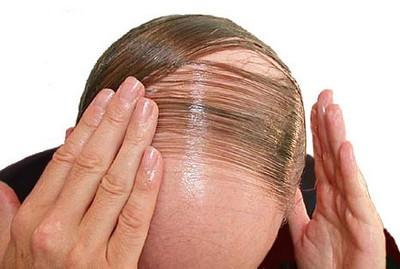 صوره علاج تساقط الشعر للرجال بالاعشاب