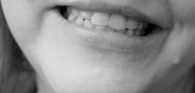 طريقَة لازالة السواد حَِول الفم