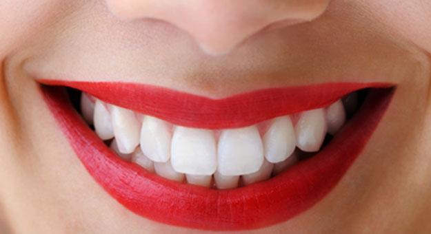 صوره تبييض الاسنان في يوم واحد