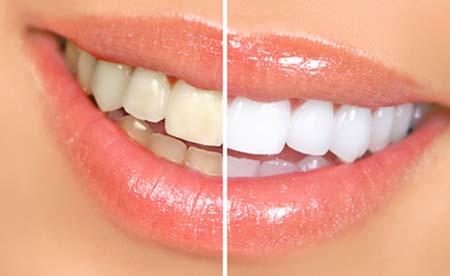 بالصور تبييض الاسنان في يوم واحد 20160629 2617