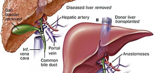 صوره كيف تتم عملية زراعة الكبد