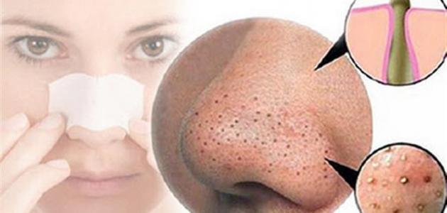 طريقة التخلص من البقع السوداء في الوجه