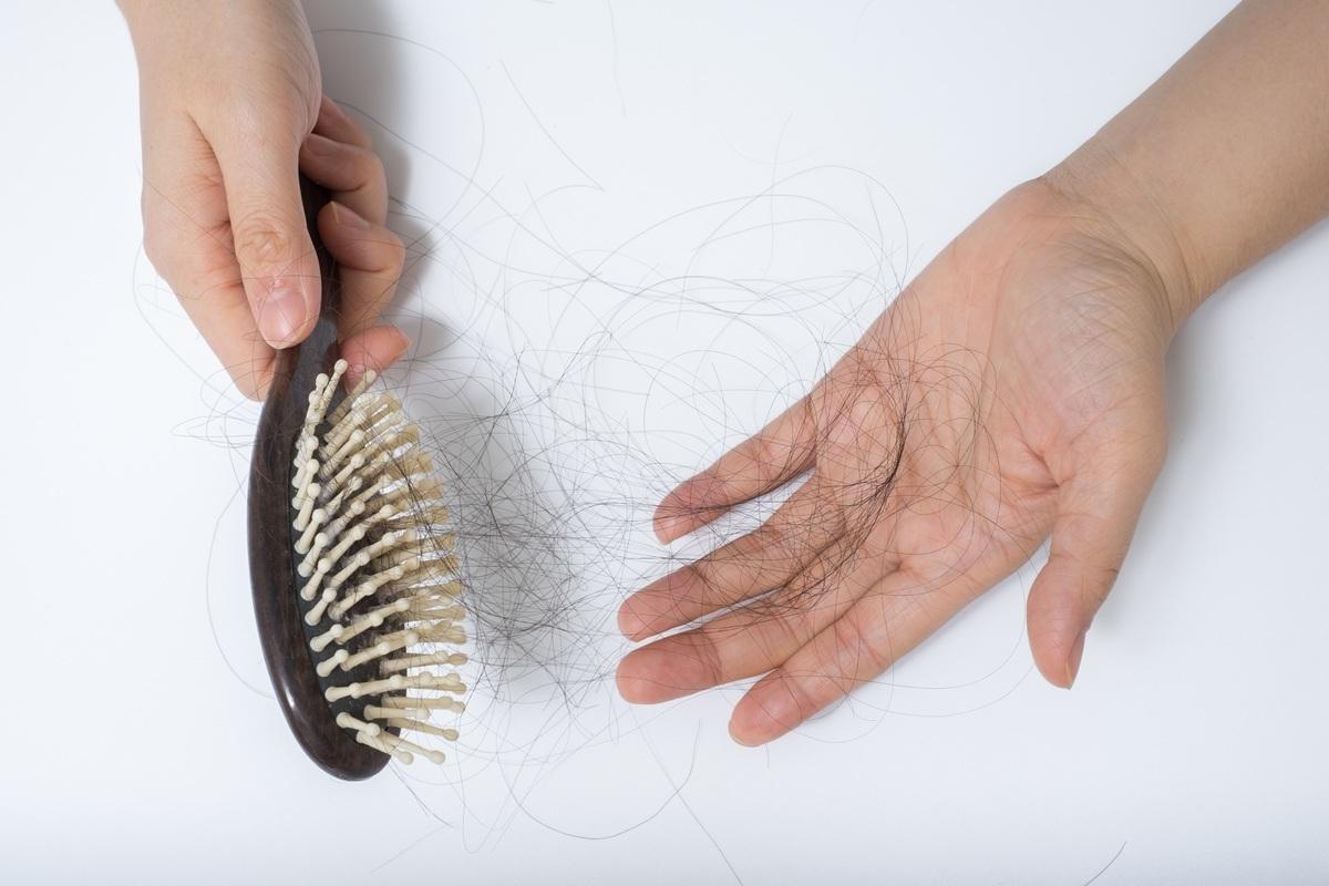 صوره علاج مشكلة تساقط الشعر