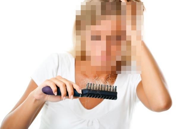 صوره هل ينبت الشعر المتساقط من جديد