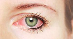 صوره طرق علاج العين من الاحمرار