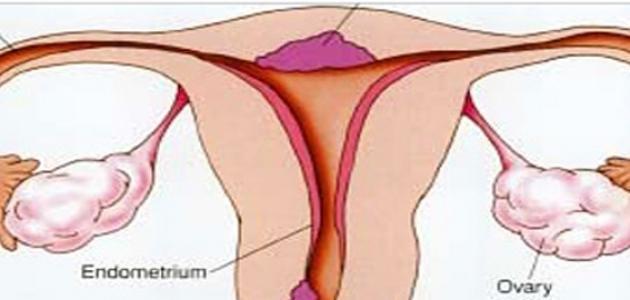 بالصور علاج برد الرحم بالاعشاب ما هي أعراض جرثومة الرحم