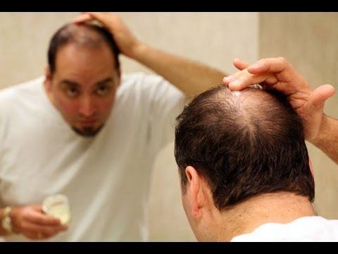 صوره كيف تعالج تساقط الشعر عند الرجال