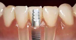 صوره سعر زراعة الاسنان في مصر