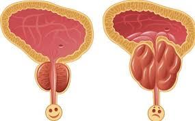 صوره مرض تضخم البروستاتا وعلاجها