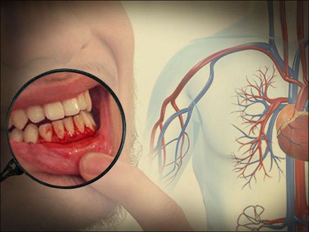 صوره علاج التهاب اللثة والاسنان بالاعشاب