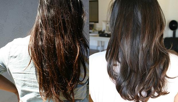 صور افضل علاج لانبات الشعر وتكثيفه