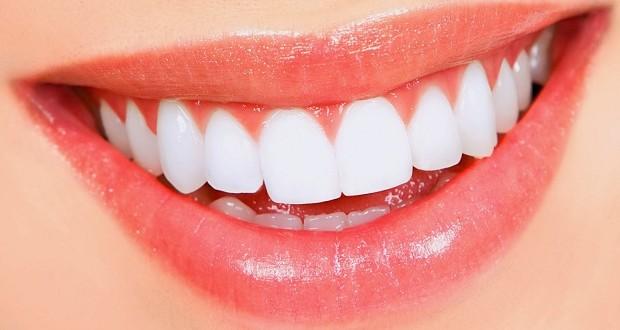 صوره تغشية الاسنان بطرق امنة