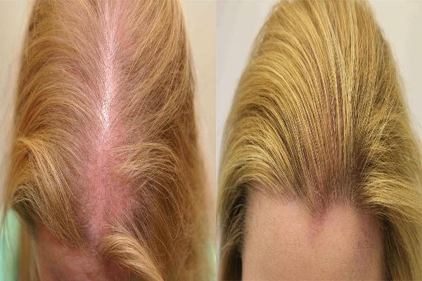 صوره علاج شعر مقدمة الراس
