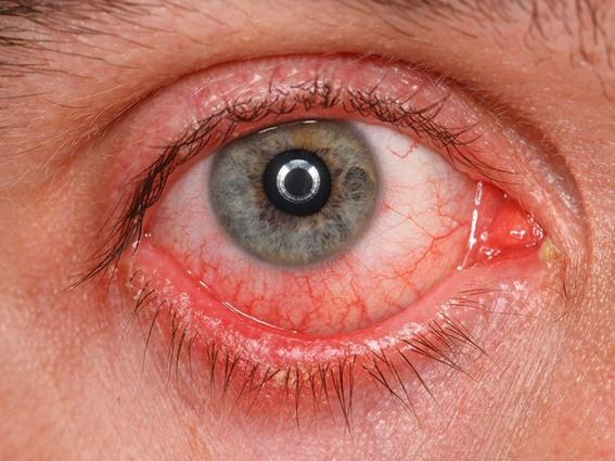 صوره مرض التهاب ملتحمة العين