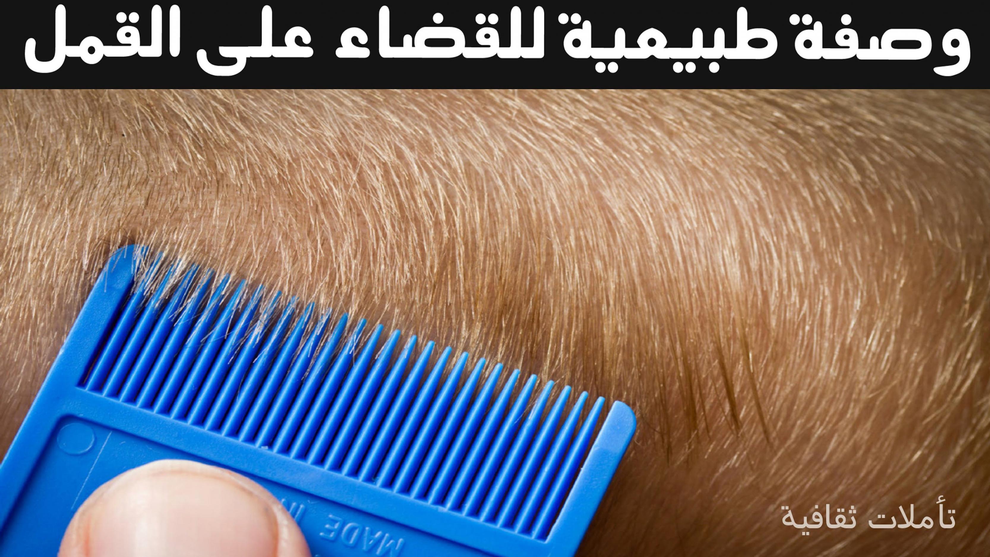 صوره طريقة القضاء قمل الشعر
