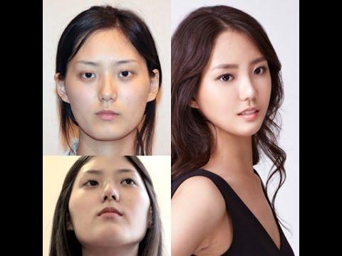 صور الممثلات الكوريات قبل وبعد عمليات التجميل