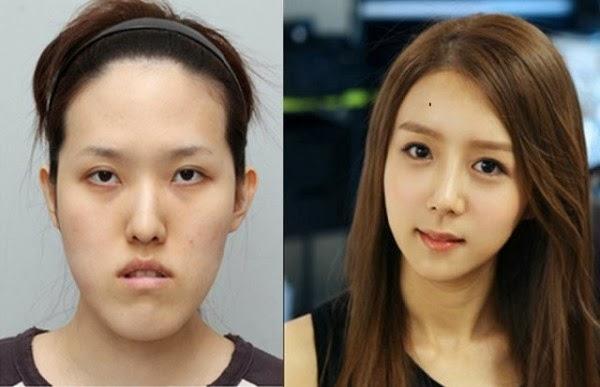 بالصور الممثلات الكوريات قبل وبعد عمليات التجميل 20160704 2128