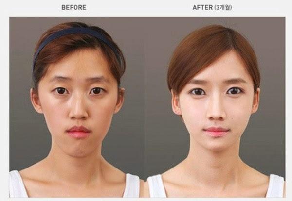 بالصور الممثلات الكوريات قبل وبعد عمليات التجميل 20160704 2131