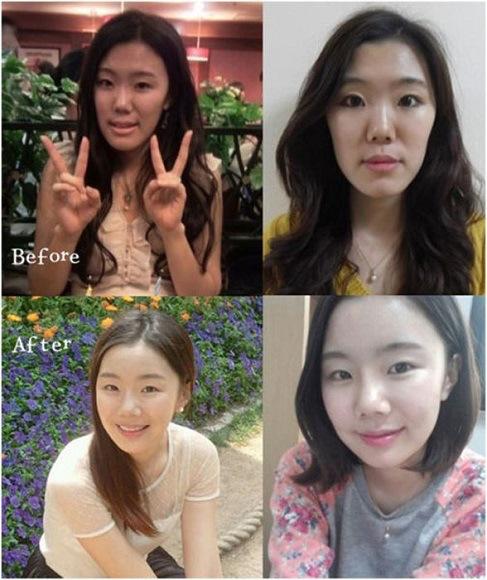بالصور الممثلات الكوريات قبل وبعد عمليات التجميل 20160704 2132