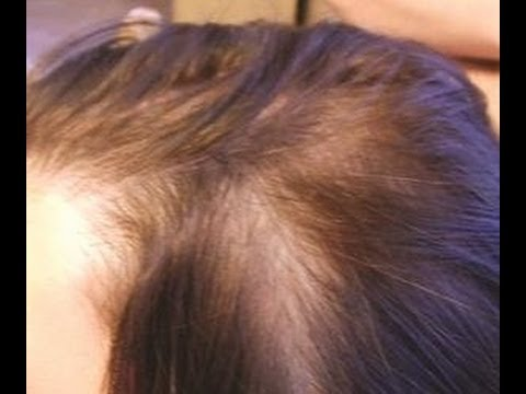 صوره شعري نبت من قدام