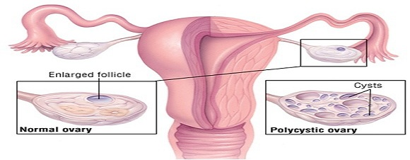 http://cwebhealth.com/wp-content/uploads/2015/04/polycystic-ovarian-syndrome.jpg