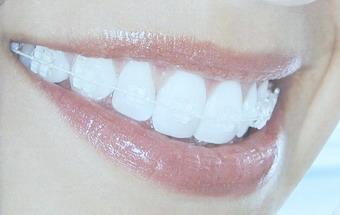 صوره تقويم الاسنان في سن الثلاثين